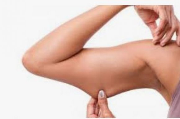 Affiner et maigrir des bras proche de LAVAL